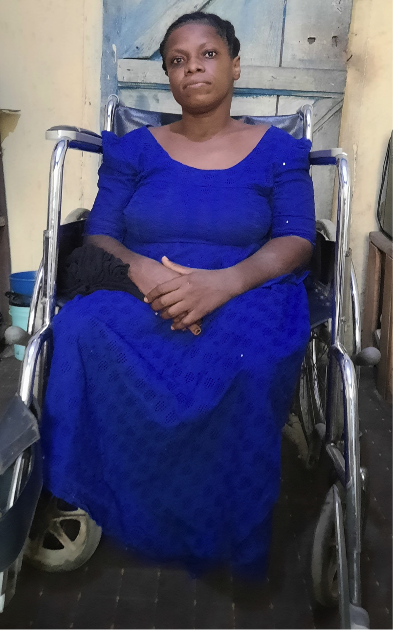 Osun Received N1.5bn in Pandemic Donations but Turned its Back on People with Disabilities