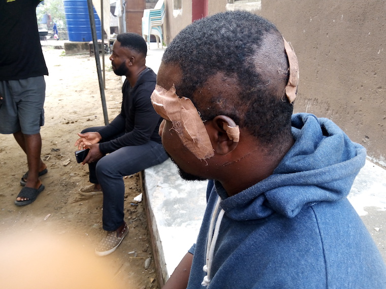 Lagos LG Chairman's Boys Attack Apapa Neighbourhood After Facilitating Escape of Killer Truck Driver