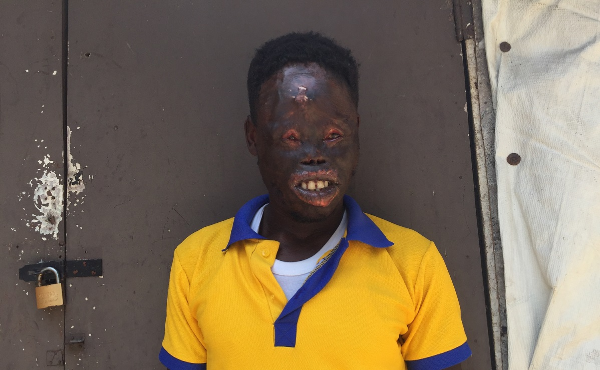 Musa Mayinta Didn't Want to Join Boko Haram, but His Badly Burnt Face Won't Let Him Get a Job