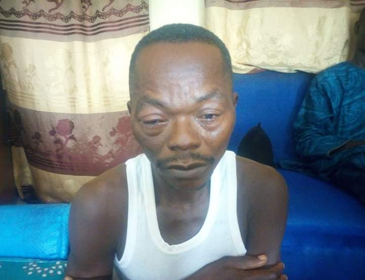 Adamawa Man Kills Pregnant Wife for Accusing Him of Infidelity